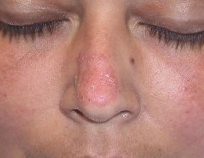 Lupus, la maladie auto-immune