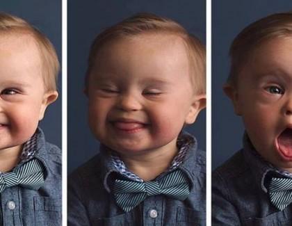 Un bébé trisomique mannequin pour une marque de vêtements